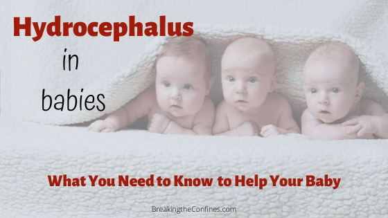 hydrocephalus in babies - what you need to know to help your baby